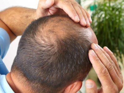 PRP capelli trattamento per alopecia a Lugano