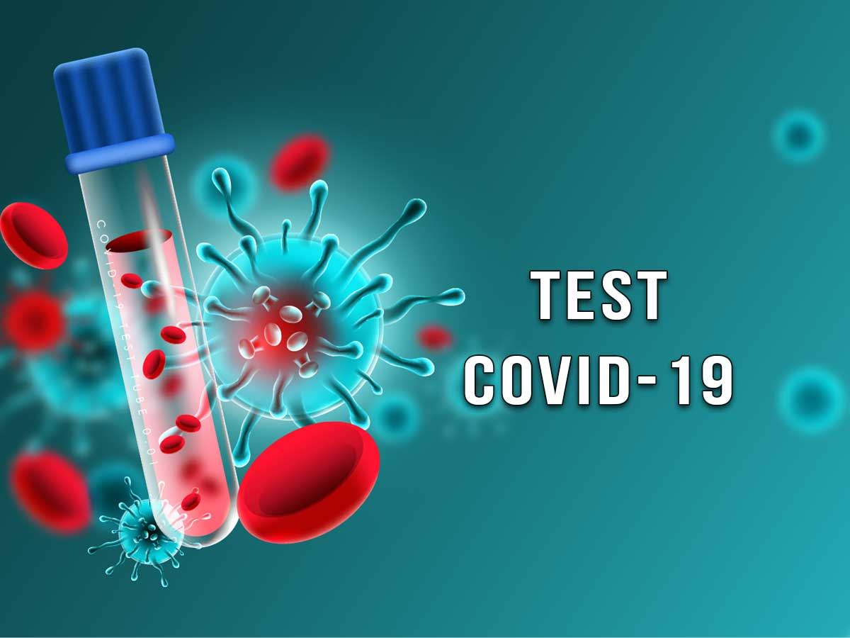 test covid19 lugano